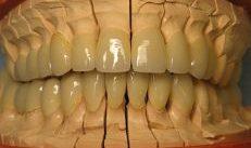 Comment entretenir votre prothèse dentaire ?